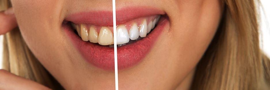 Blanqueamiento Dental Precio Córdoba - Clínica Trinidad Fonolla