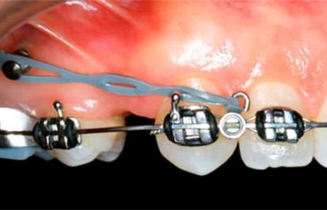 microtornillo-de-ortodoncia